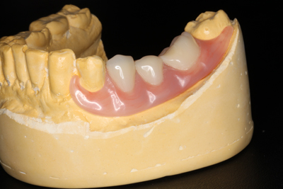 Semi-Flexible-denture-3